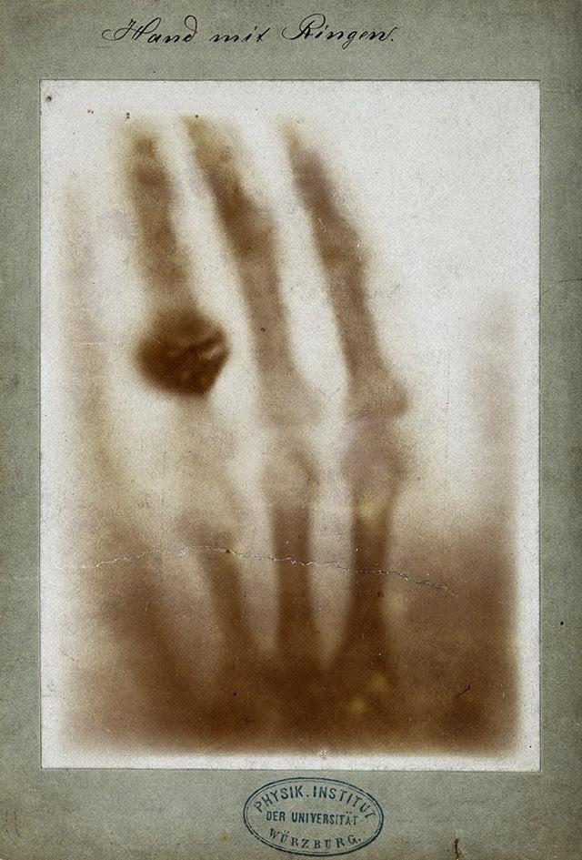 Mano con anillo, una de las primeras radiografías médicas, por Wilhem Röntgen. Imagen de la mano izquierda de su esposa, Anna Bertha Ludwig. 22 de diciembre de 1895