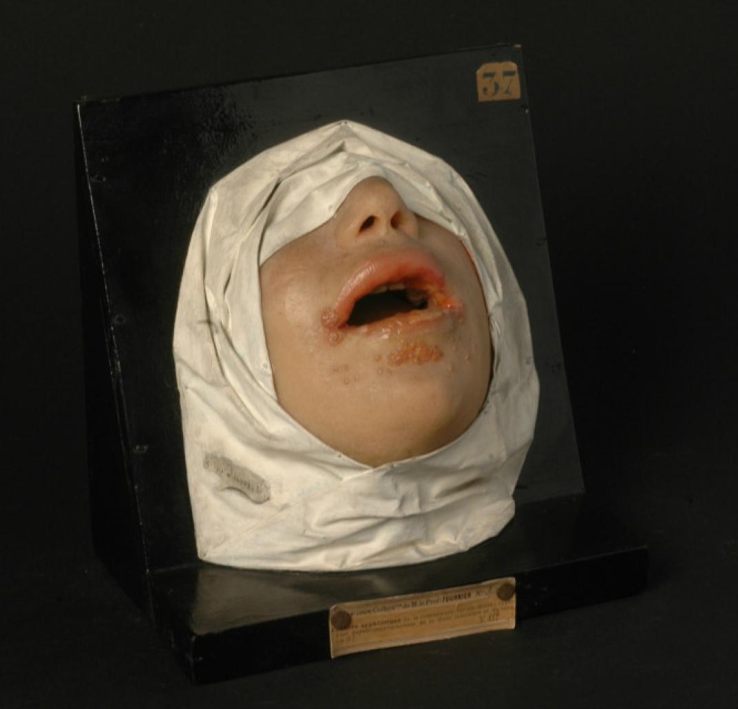 museo hospital san luis paris dermatologia enfermedades cutaneas lepra